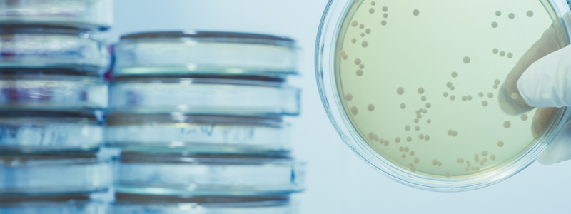 The important of Legionella Awareness in care homes