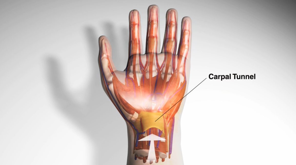 Carpal Tunnel Syndrome youtube thumbnail