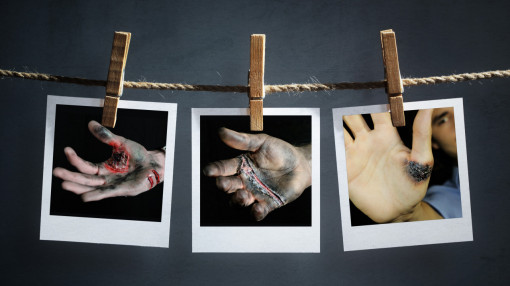 Images of various electrical burns representing the need for electrical safety in the workplace